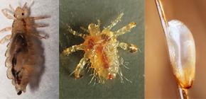 Cum arată păduchii: familiarizați cu caracteristicile aspectului și biologiei paraziților